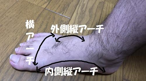 アーチの画像